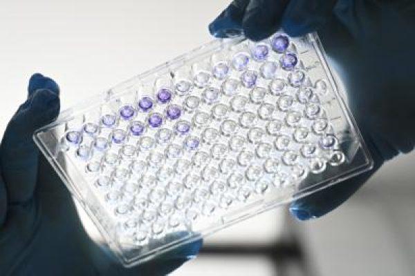 coronavirus_test_vaccino_laboratorioafp.jpg