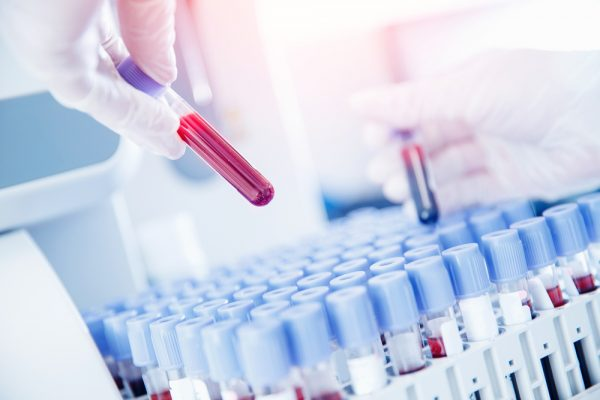 Lab,Worker,Preparing,Test,Blood,For,Detection,Of,Antibodies,And